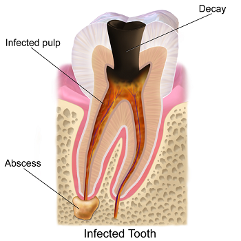 Tooth Decay Is Oldest Disease Known to Man_350x350
