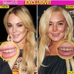 lindsay_lohan_teeth