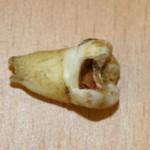 John Lennon's Rotten Molar Fetched $31,000!