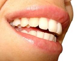 Tips to Whiten Yellow Teeth