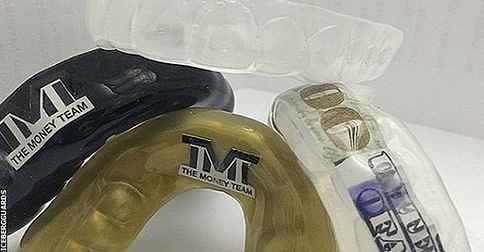 Check Out Floyd Mayweather's $25,000 Mouthguard